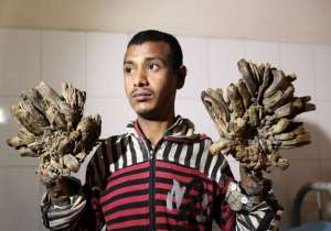 Bangladesh Tree man- India Tv- India Tv