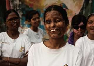 Acid attack victims to find a career in tattoo art - India TV