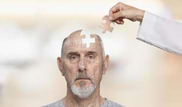New Alzheimer's test can predict the age of...
