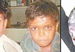 drunk youths throw boiling oil on four kids in up