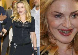 omg madonna looks horrifying in those gold grills...