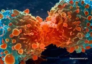 two thirds of cancer cases due to bad luck study...