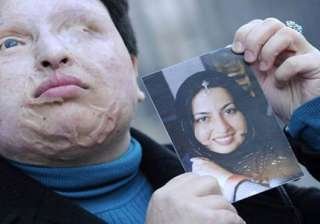 iran eye for an eye acid attack postponed - India...