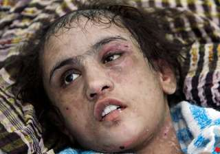 tortured afghan girl wants in laws jailed - India...