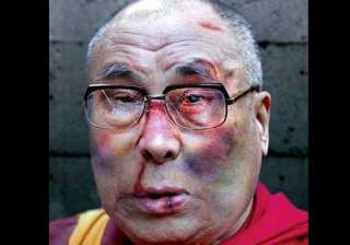was the dalai lama subjected to physical torture...