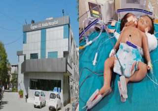 amazing conjoined twins in haryana have a single...