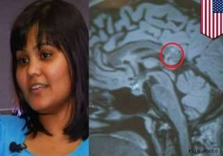 hyderabad woman s brain tumour turns out to be...