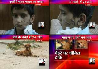 shimla boy gets 24 stitches after stray dogs...