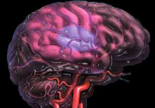 16 lakh people suffer from stroke in india study...