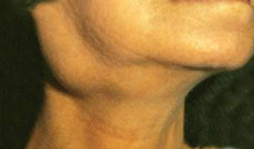 swollen neck glands may indicate cancer - India TV