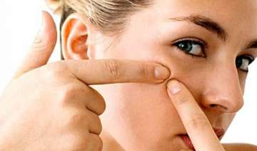 tips to avoid acne rashes in summer - India TV
