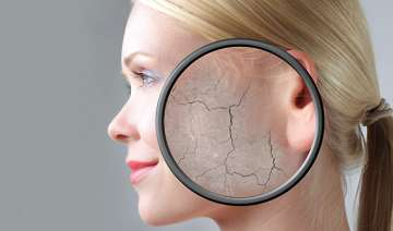 six easy tips to cure skin dryness - India TV