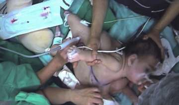 chile girl dies after surgery split her from...