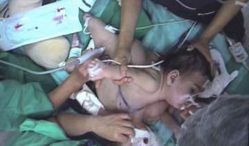conjoined twin girls in chile separated after 18...