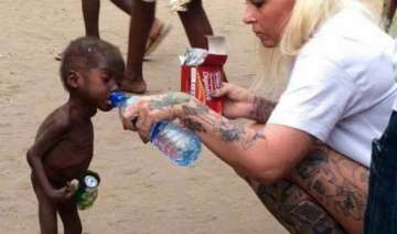 heart breaking starved nigerian toddler saved by...