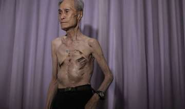 in pics nagasaki atomic bomb survivor shows his...