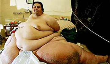 know more about the world s fattest man jon...