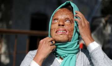 acid attacks what india should learn from...