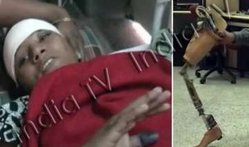 lucknow doctors perform surgery on arunima s...