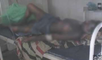 tribal youth set on fire in mp - India TV