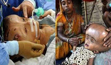tripura girl with giant head syndrome roona gets...