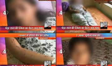 unknown person throws acid on sleeping girl in up...