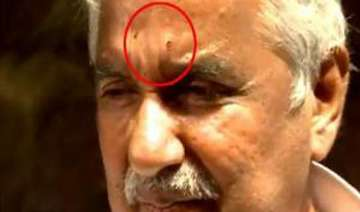 chandy injured in stone pelting cpi m rules out...